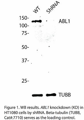 Validated ABL1 Lentiviral shRNA #V1141