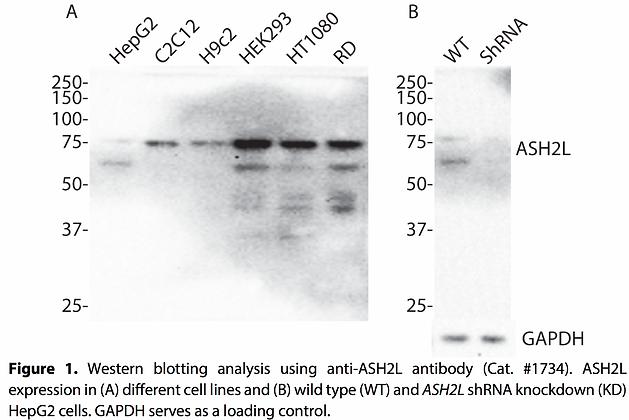 Validated ASH2L Lentiviral shRNA #V1734