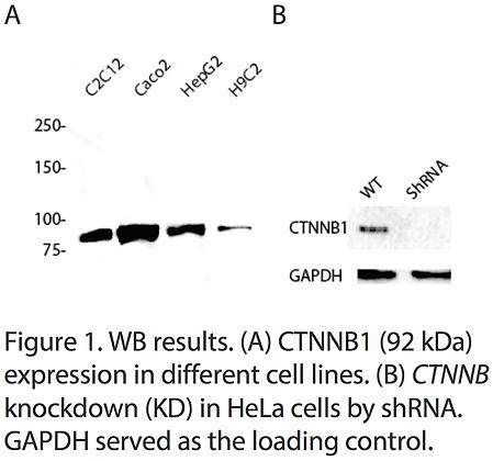 Validated CTNNB1 Lentiviral shRNA #V1711