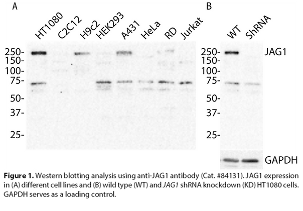 Anti-JAG1 Rabbit Monoclonal Ab #84131