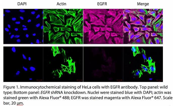 Validated EGFR Lentiviral shRNA #V2326