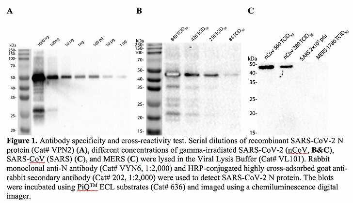 Anti-Nucelocapsid (N) Rabbit mAb #VYN6