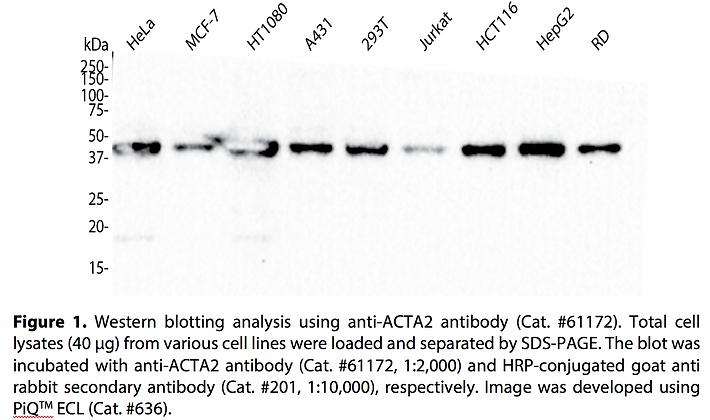 Anti-ACTA2 Rabbit Monoclonal Ab #61172