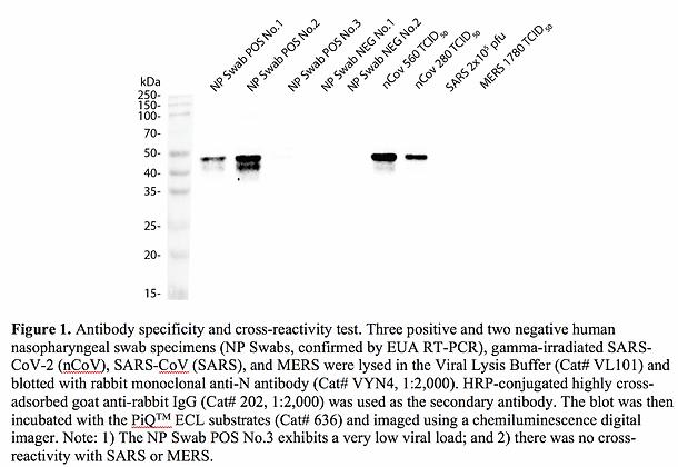 Anti-Nucleocapsid (N) Rabbit mAb #VYN4