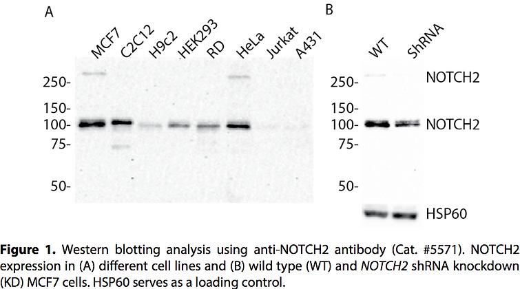 Validated NOTCH2 Lentiviral shRNA #V5571