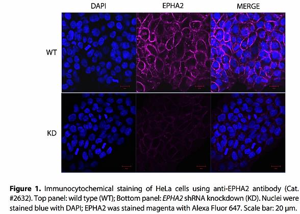Validated EPHA2 Lentiviral shRNA #V2632