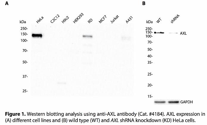 Validated AXL Lentiviral shRNA #V4184