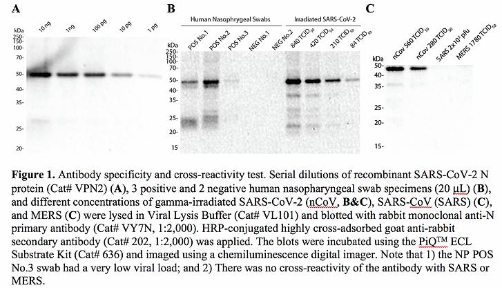 Anti-Nucleocapsid (N) Rabbit mAb #VYN7