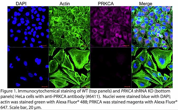 Validated PRKCA Lentiviral shRNA #V6411