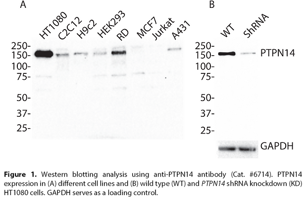 Anti-PTPN14 Rabbit Polyclonal Ab #6714