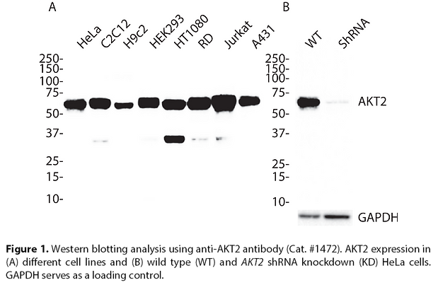 Validated AKT2 Lentiviral shRNA #V1472