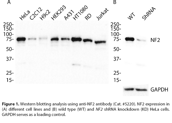 Validated NF2 Lentiviral shRNA #V5220