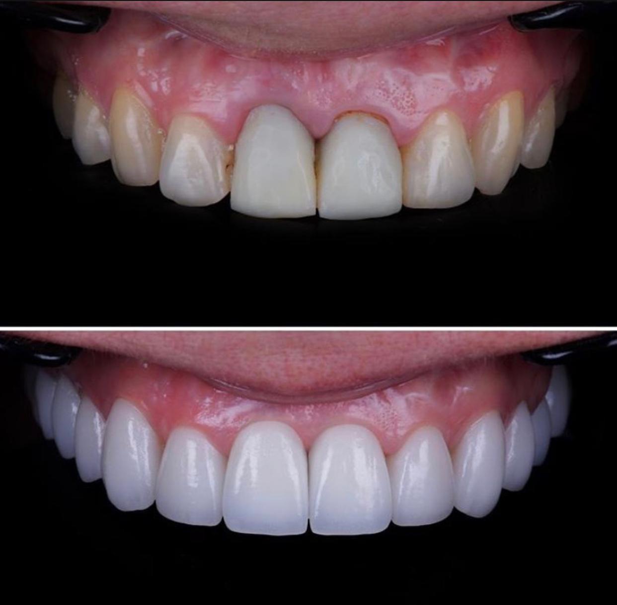 Zahnmedizin / Implants / Veneers / Turkey / Medicterrean