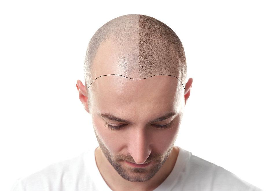 Die-Geschichte-der-Haartransplantation.j