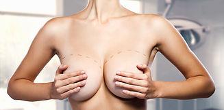 Brustvergrößerung-Türkei2-1.jpg