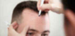 Haartransplantation-bei-Geheimratsecken-
