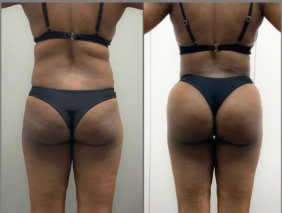Brazilian butt lift BBL