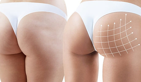Pros-and-Cons-of-a-Brazilian-Butt-Lift-F