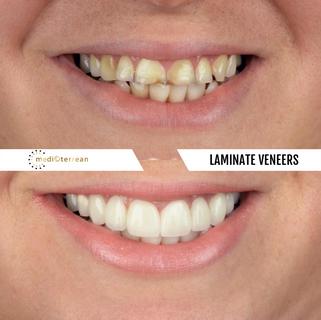 Dentaltreatments by MEDICTERREAN