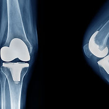 knee arthroplasty front view and side view_edited.jpg