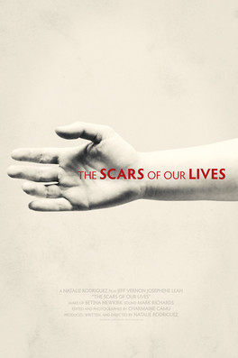 The Scars of Our Lives