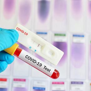 Combien vont coûter les tests PCR et antigéniques à partir d'octobre ?