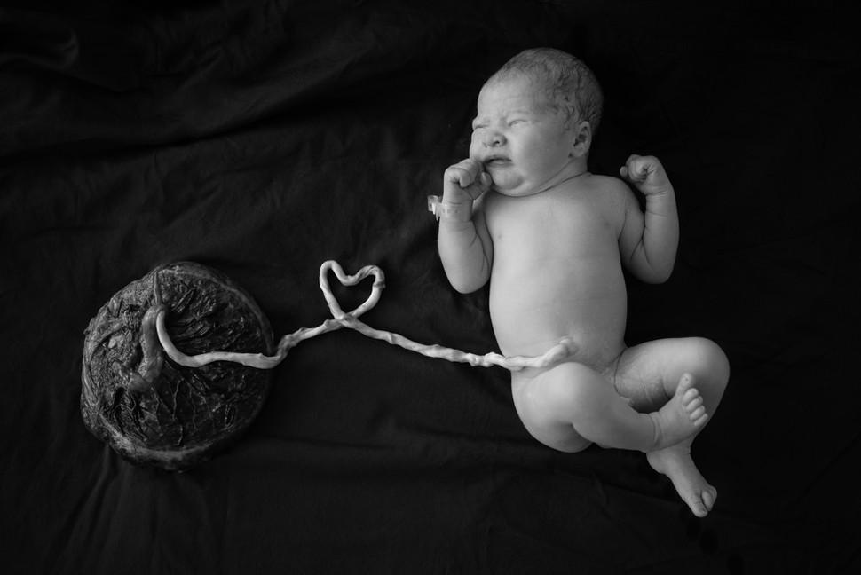 Förlossningsfoto i Umeå