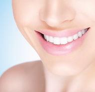 Teeth Whitening, White Teeth, Beautiful Smile