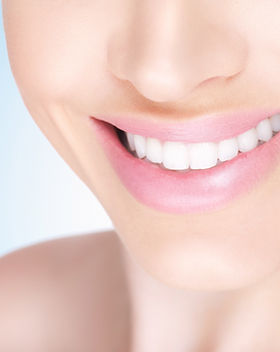 Bleaching/ Zahnaufhellunf, für ein strahlend weißes Lächeln