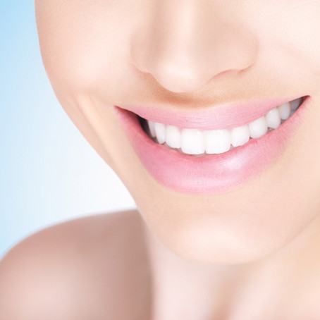 3 Reasons Why You Should Get Your Teeth Whitened This Summer!