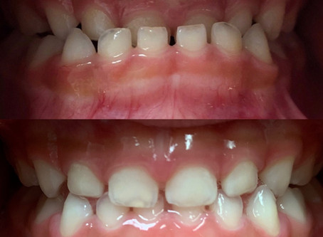 Does this look like your child teeth? No braces needed!