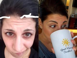 WOMEN'S HEREDITARY HAIR LOSS