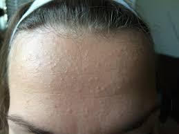 Flesh Colored Bumps on my Forehead