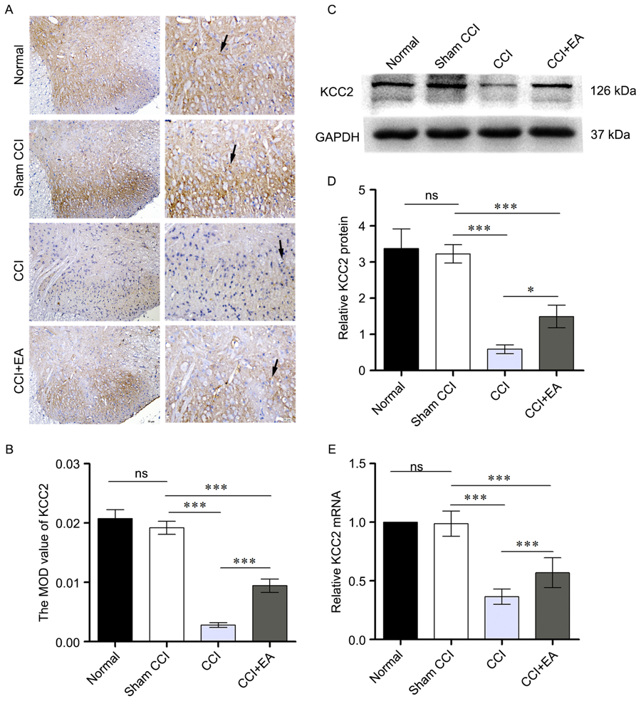Figure 3. EA prevented KCC2 downregulation in CCI rats (n=5). (A) The KCC2 was stained with immunohistochemistry (The left side of the column: Scale bar, 50 μm; the right side of the column: Scale bar, 20 μm). (B) The bar graph indicated the quantitative KCC2 positive regions in four groups. (C) Western blot analysis of total KCC2 protein in L4‑L6 demonstrated a marked reduction in CCI rats. GAPDH was used as the loading control. (D) Summary data from western blotting experiments. (E) Quantification of relative KCC2 mRNA levels in CCI rats. *P<0.05, ***P<0.001 as indicated; ns, not significant. CCI, chronic constriction injury; EA, electro‑acupuncture.