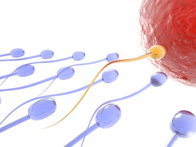 Traditional Chinese Medicine Treatment for Male Infertility due to Poor Sperm Quality