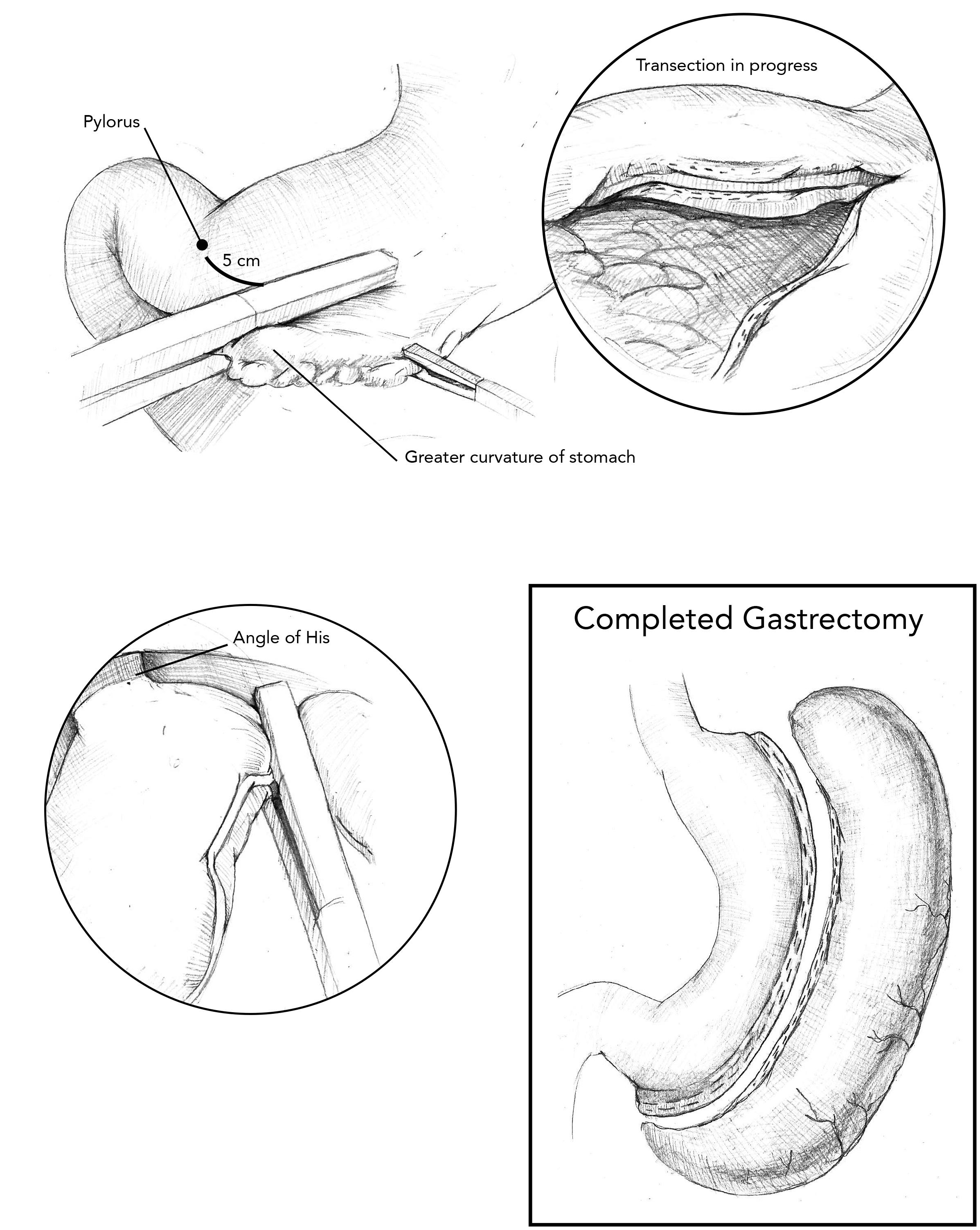 Laparoscopic Gastrectomy