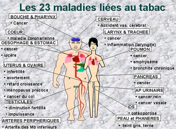 tabac 23 maladies.png