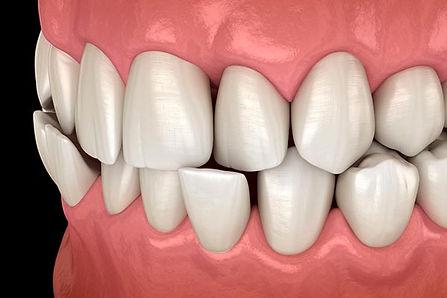 Corregir mordida cruzada con ortodoncia