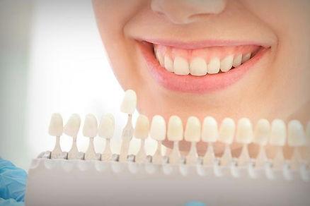 Blanqueamiento dental manchas intrinseca