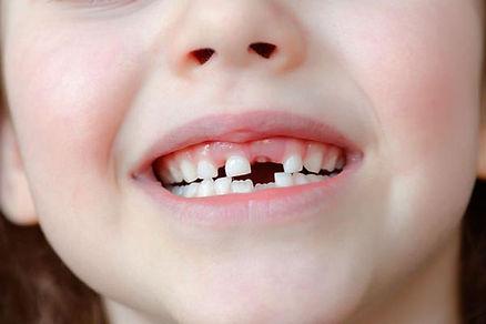 ortodoncia-interceptiva-dientes-leche-sa
