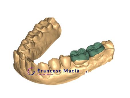 ¿Qué son las incrustaciones dentales? ¿Qué tipos hay?