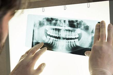 Ortodoncia Infantil previene cirugia den