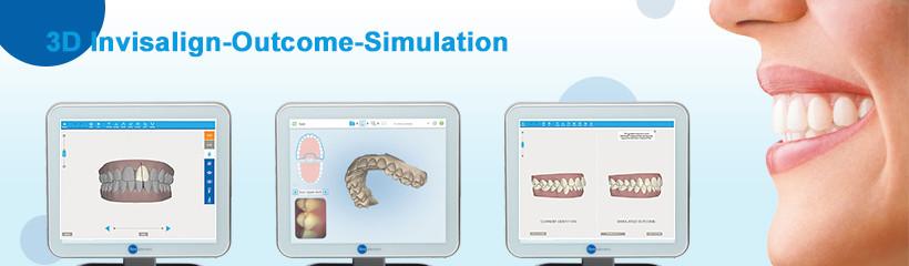 Escaner intraoral, simulación de tratamiento de ortodoncia