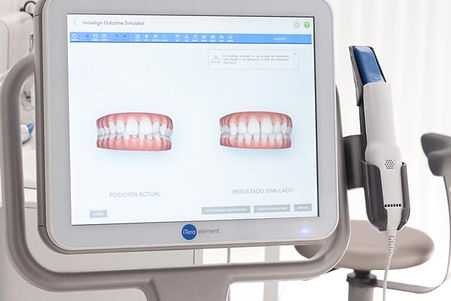 Simulacion 3d itero para ortodoncia en Sant Cugat del Valles