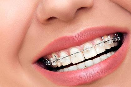 ortodoncia-brackets-zafiro-sant-cugat-va