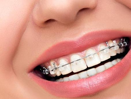 ¿Cuándo es recomendable una ortodoncia?