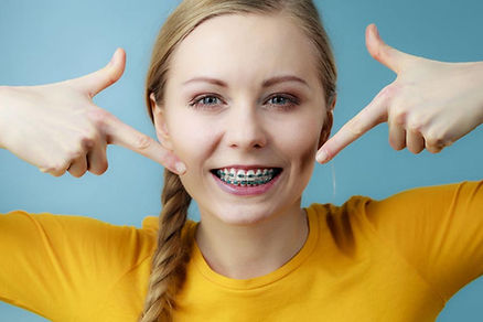 Ortodoncia para adolescentes en Sant Cug