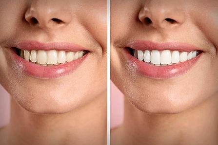 blanqueamiento dental manchas extrinseca
