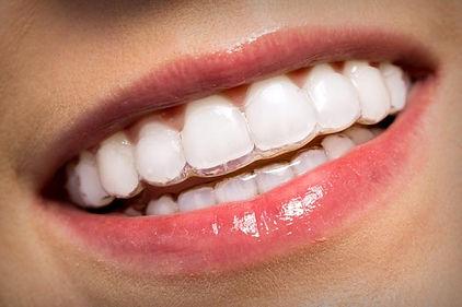 ortodoncia invisible invisalign en Sant