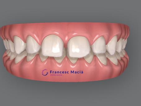 ¿Diastemas entre los dientes?